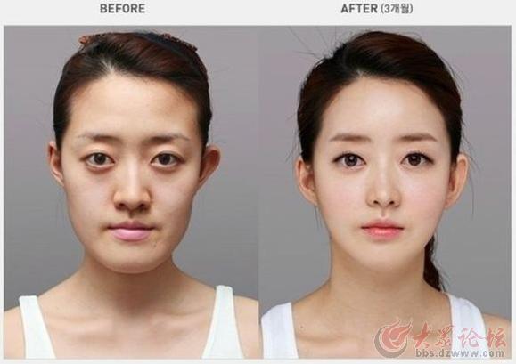 韩国人整容前后对比图片